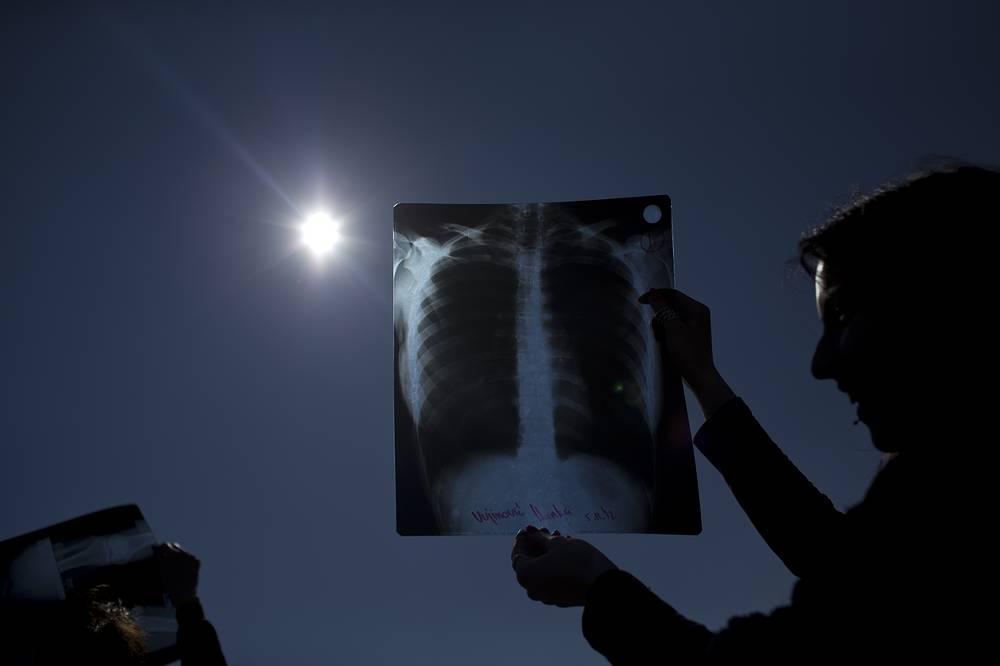 People using exposed X-ray films to observe a partial solar eclipse in Belgrade, Serbia