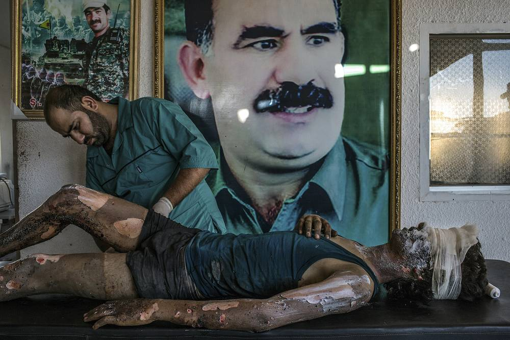 Brazilian photographer Mauricio Lima for The New York Times, 1st prize singles in the General News category. The picture shows a doctor rubbing ointment on the burns of a 16-year-old Islamic State fighter named Jacob at a Y.P.G. hospital compound on the outskirts of Hasaka, Syria, 01 August 2015
